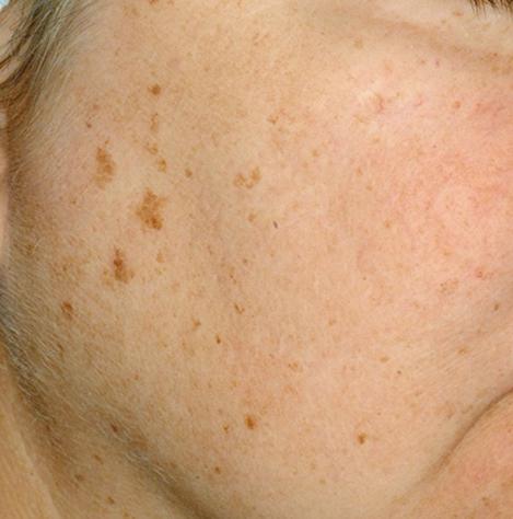 Pigmentflecken Gesicht Entfernen
